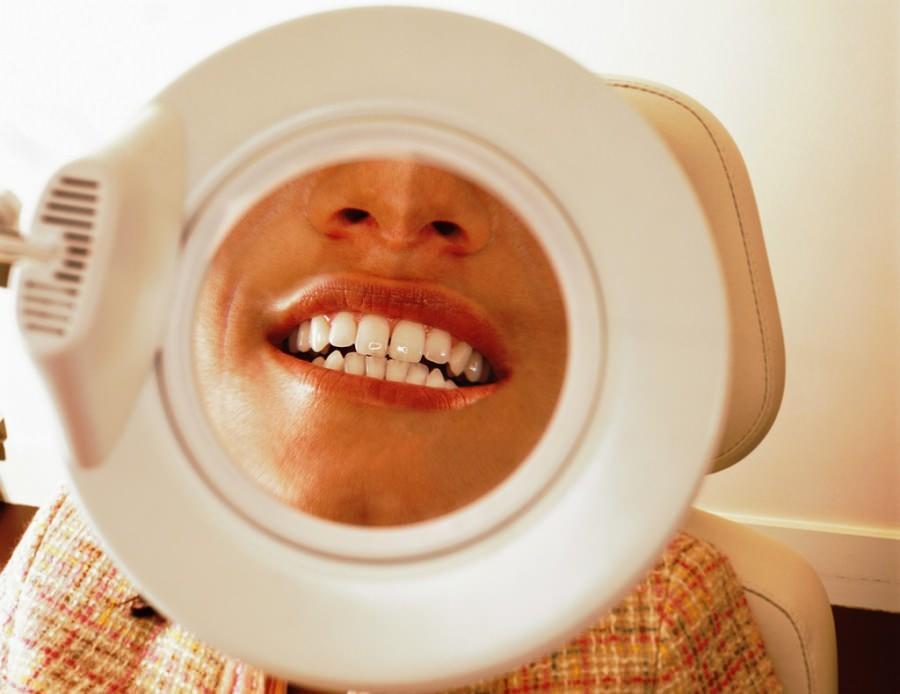 Лазерное отбеливание 1 зуба цена