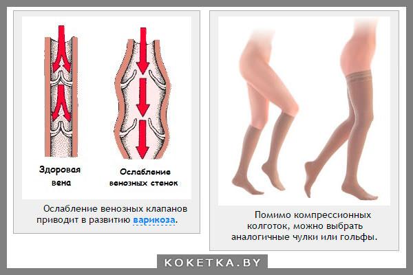 Варикоз глубоких вен на ноге симптомы