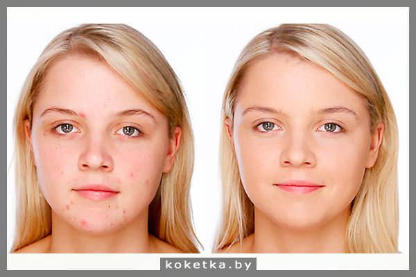 Как замаскировать прыщи на лице? Несколько хитростей