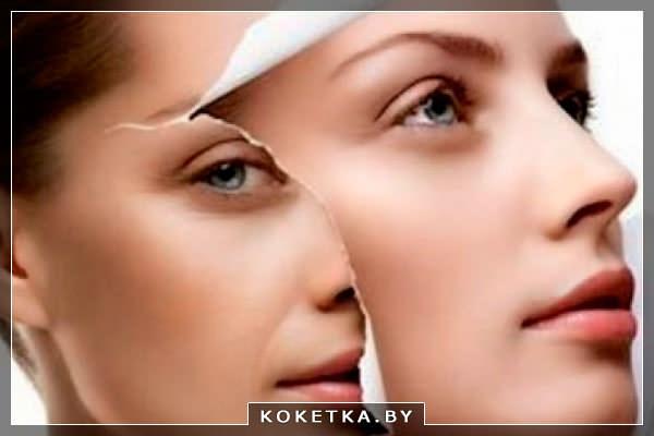 Омоложение кожи лица: операция или плазмотерапия?