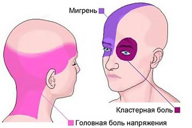3 вида головной боли и места её локализации
