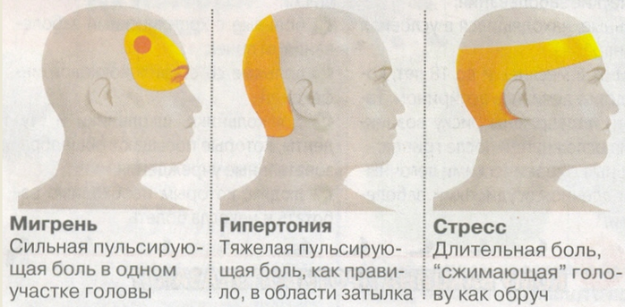 Места локализации головной боли