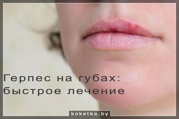 Герпис губ рот рта оральный секс